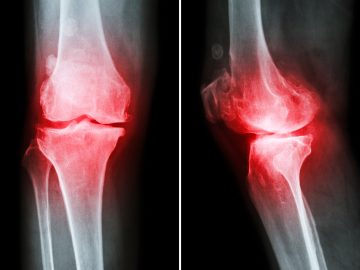 Stem-cell-knee-prolotherapy