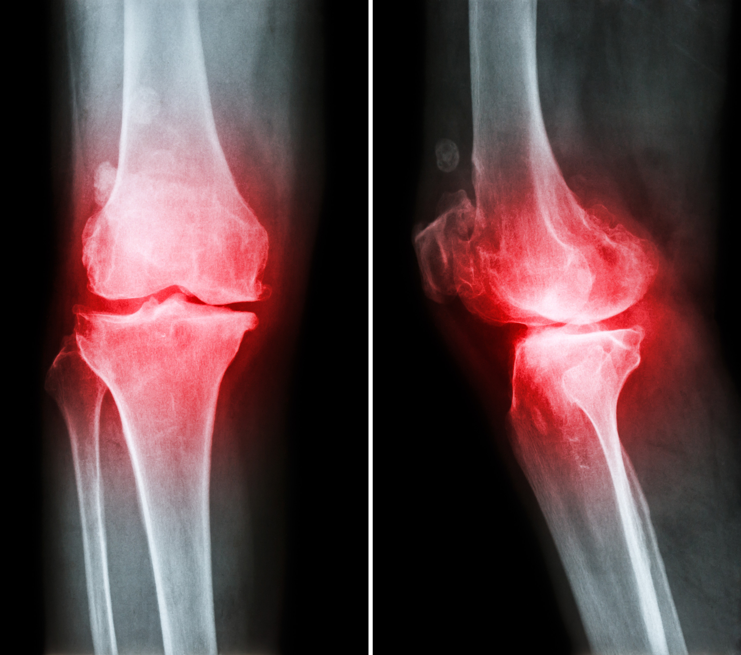 Stem Cells Have A Protective Role For The Osteoarthritis