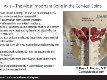 Cervical Neck Archives Prolotherapy Org