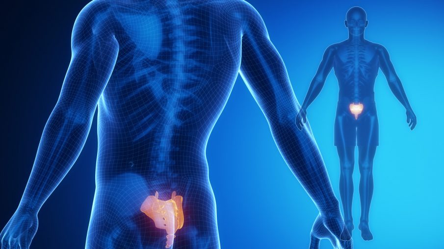 Prolotherapy Treatments For Sciatica Prolotherapy