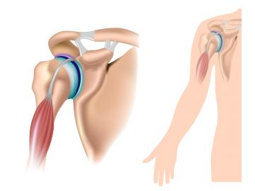 shoulder SLAP tear